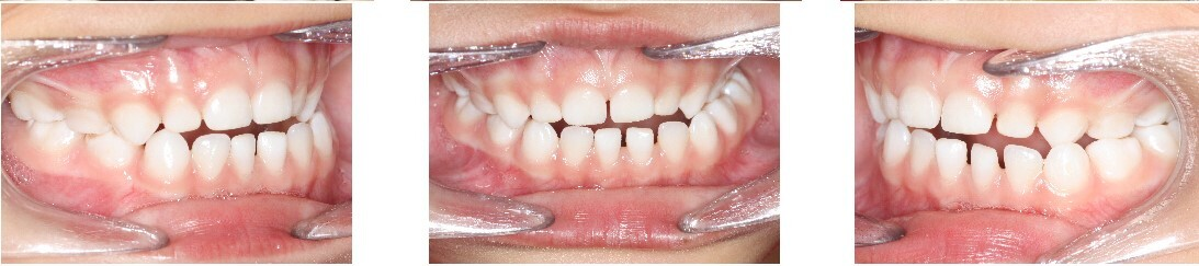 Crossbite: Occurs when the upper and lower teeth do not align correctly.
