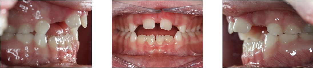 Open Bite: Lack of contact in the anterior region of the dental arches.