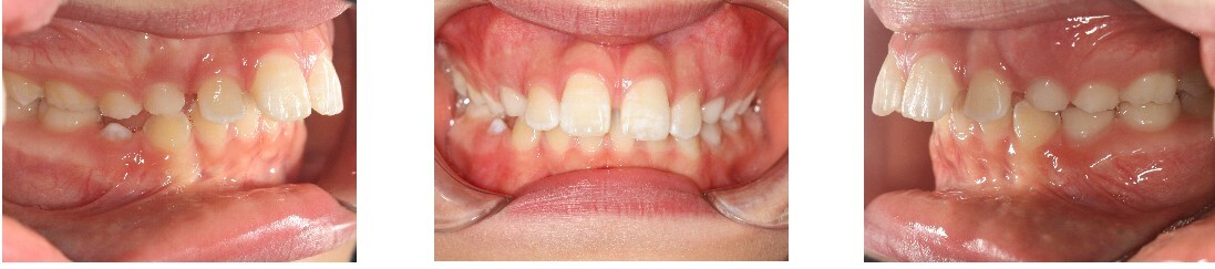 "Increased Overjet: An overjet is where the top teeth extend past the bottom teeth horizontally. ""sticking out teeth""."